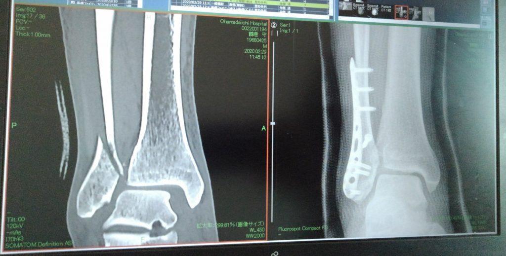骨折直後の画像と術後5日後の画像